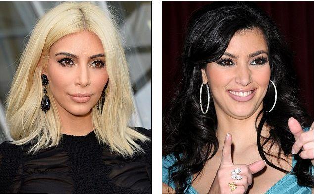 cirurgia plástica segredo Kim Kardashian