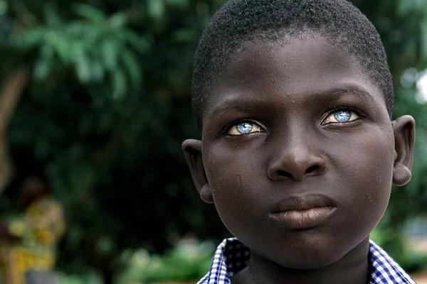 La claridad de estos ojos y el ébano de la piel dan lugar a un contraste muy bello